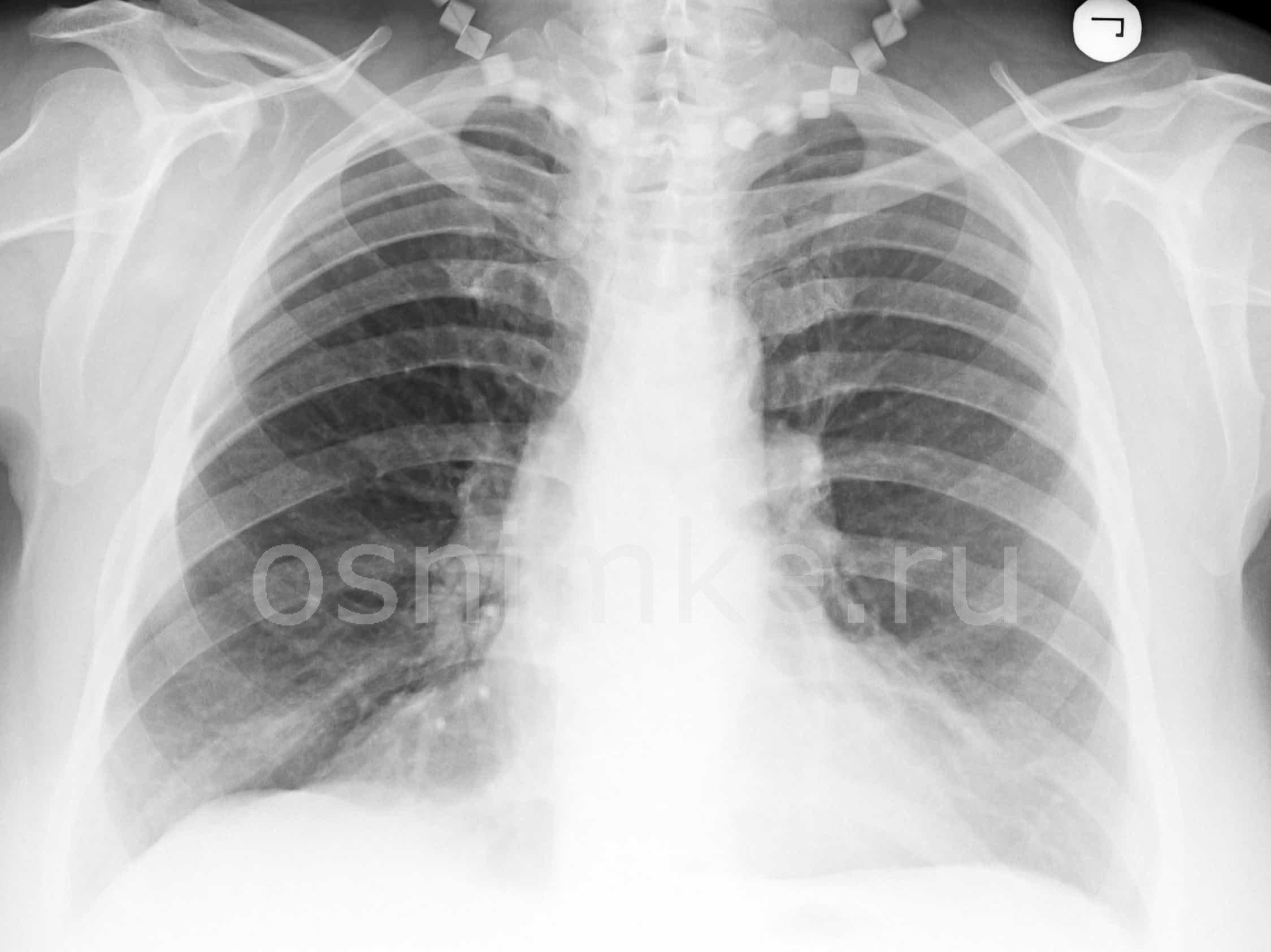 Рентгеновские снимки при пневмонии и бронхите thumbnail