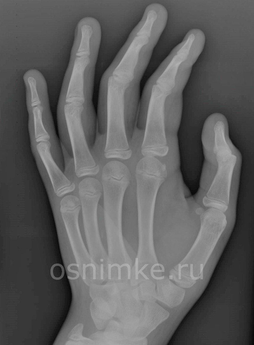 Снимок руки