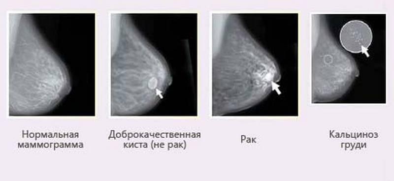 Маммография и флюорография в один день: за и против