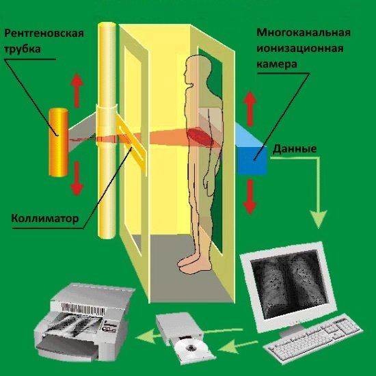 Принцип работы рентген аппарата