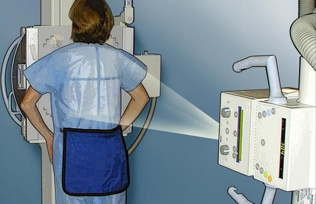 Плёночный рентген аппарат (старого образца) самый вредный