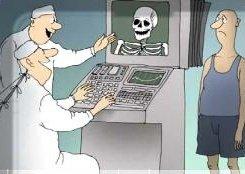 Рентгеноскопия: что за метод диагностики