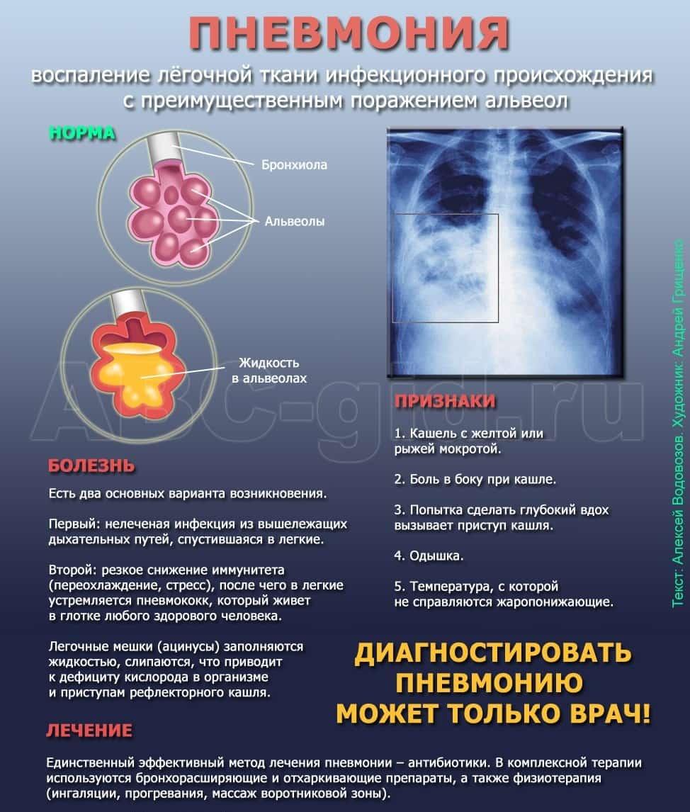 Как выглядит пневмония на снимке