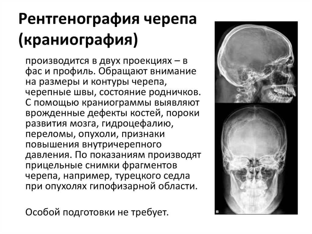 Рентгенография черепа: показания и особенности проведения исследования