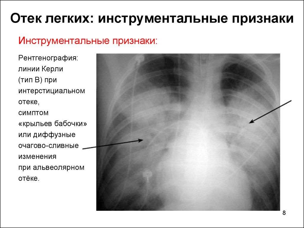 Отёк лёгких: рентгенологические признаки патологии