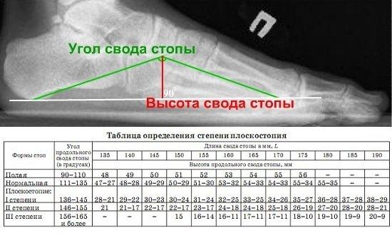 Степени плоскостопия на рентгене