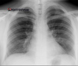 Снимок здоровой грудной клетки — негатив