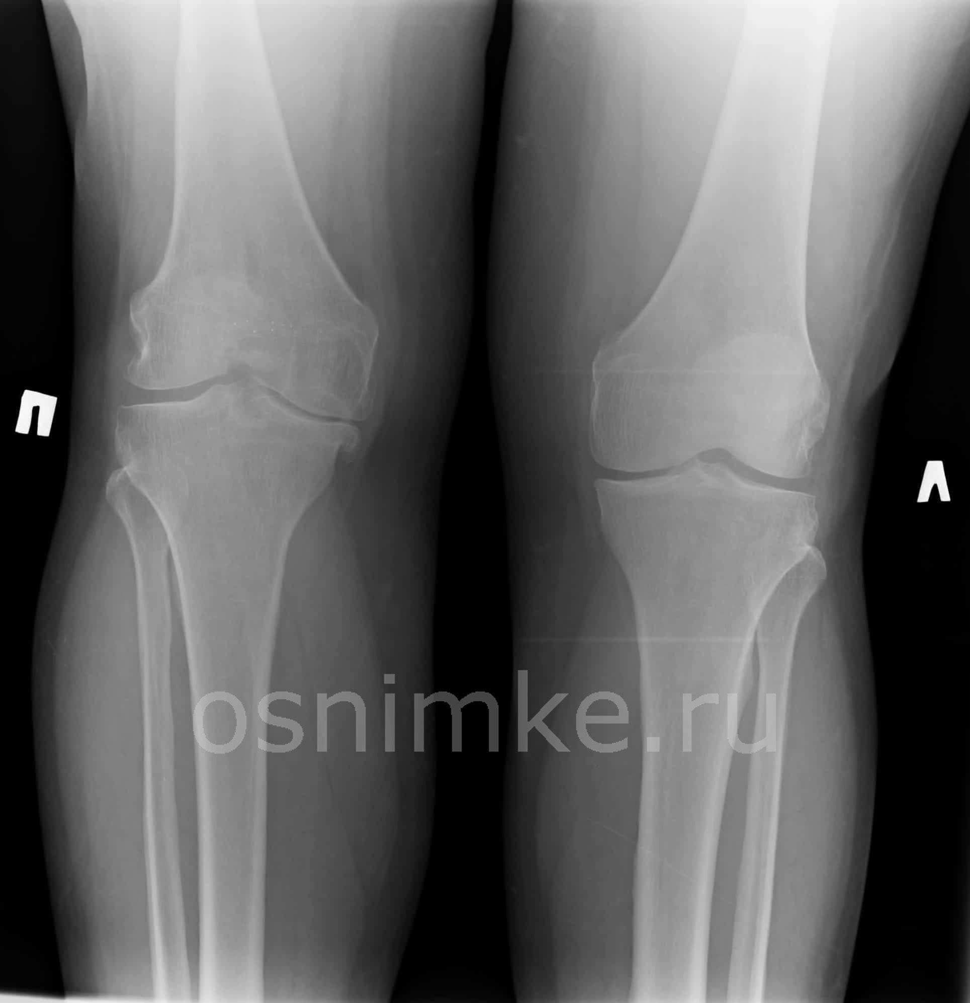 Артроз коленного сустава рентген
