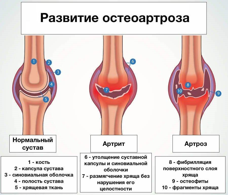 Рентген коленного сустава: что показывает диагностика