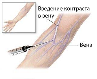 Рентген почек с контрастным веществом: особенности проведения исследования