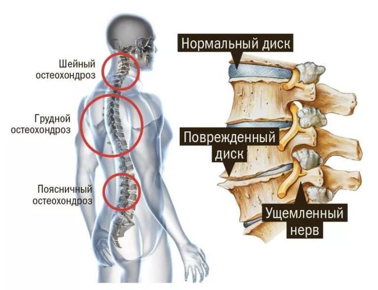 Рентген шейного отдела позвоночника с функциональными нагрузками