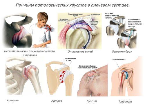 Изображение - Снимок плечевого сустава Prichiny-patologicheskih-hrustov-v-plechevom-sustave-500x374