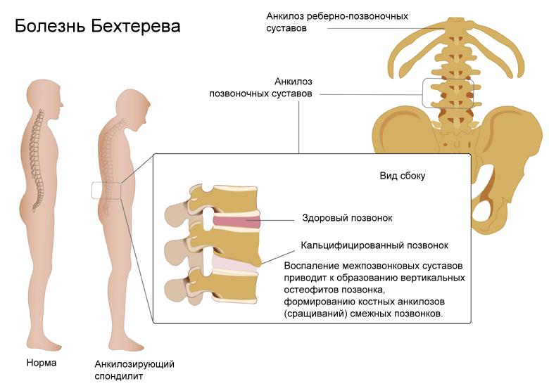 Рентген пояснично-крестцового отдела позвоночника
