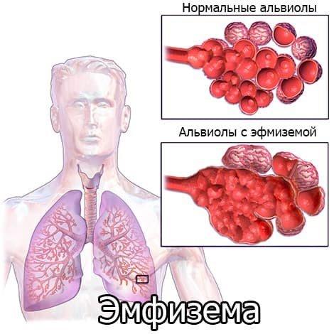 Признаки эмфиземы легких на рентгене