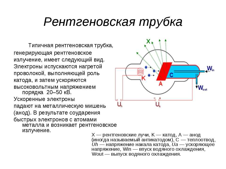 Рентген — основные сведения о диагностическом методе