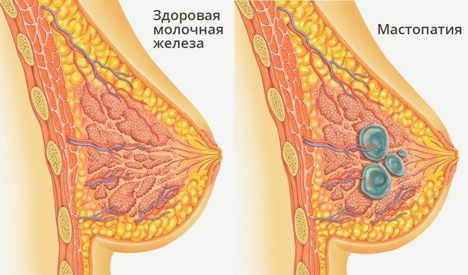 Что можно увидеть на рентгене молочных желез