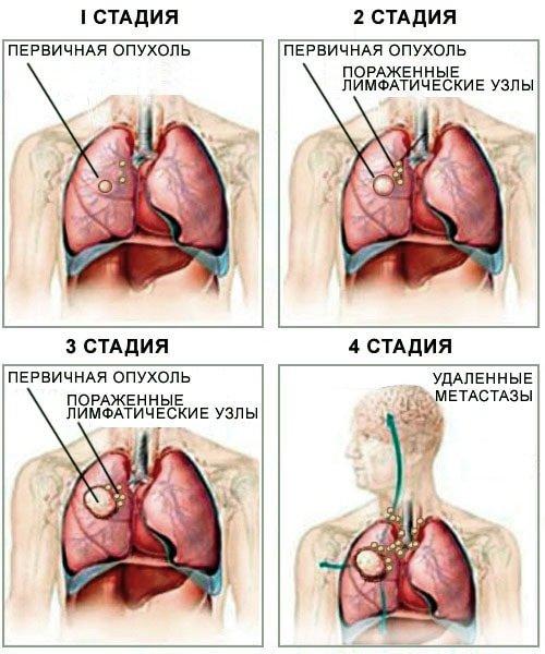 Как выглядит рак легких на рентгене: особенности диагностики