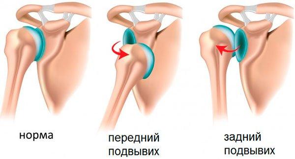Изображение - Снимок плечевого сустава podvyvikh-plechevogo-sustava-vidy