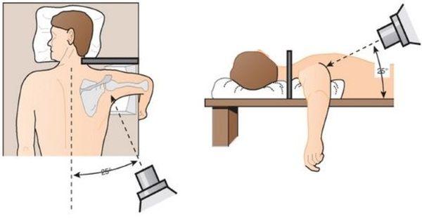 Изображение - Снимок плечевого сустава rentgen-plechevogo-sustava-3