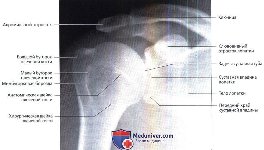 Патологии плечевого сустава: снимок