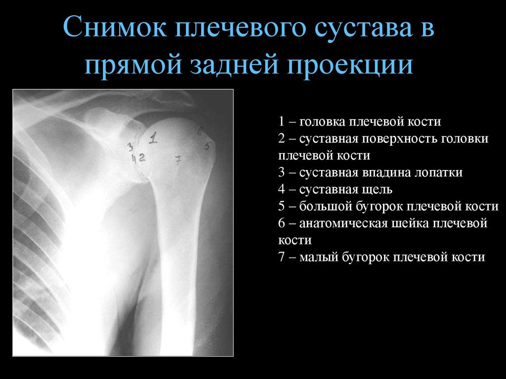 Рентген плечевого сустава что показывает и как проводится