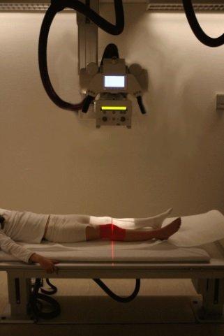 Как выглядит остеомиелит на рентгенограмме
