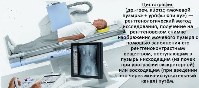 Рентген мочевого пузыря: как подготовиться и какие могут быть осложнения