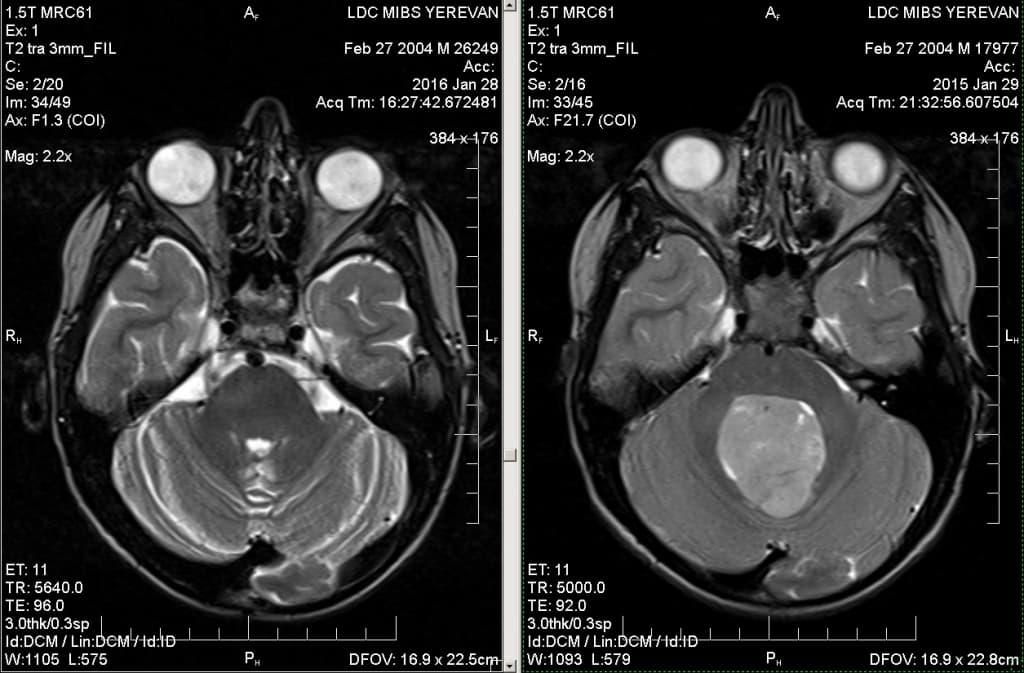 Как делают МРТ головного мозга: что показывает