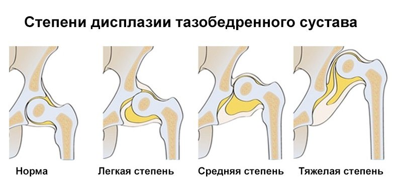 Рентген тазобедренных суставов у детей. Норма