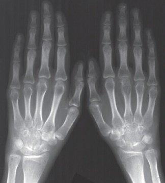 Видно ли на рентгене воспаление сустава