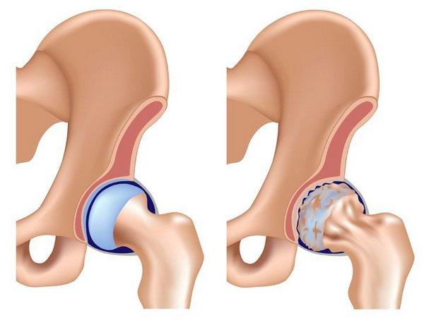 Эндопротез тазобедренного сустава рентген - Все про суставы