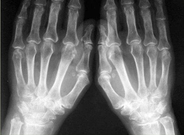 Признаки артрита на рентгене: ревматоидный коленного сустава