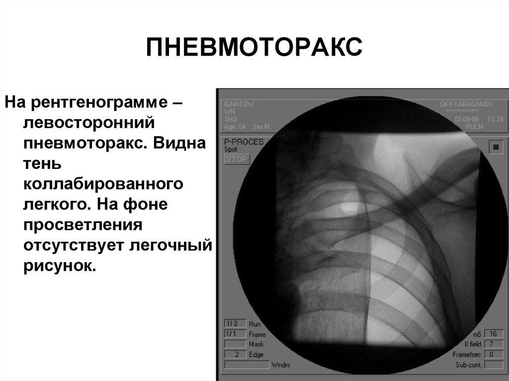 Пневмоторакс: особенности патогенетического характера на рентгене