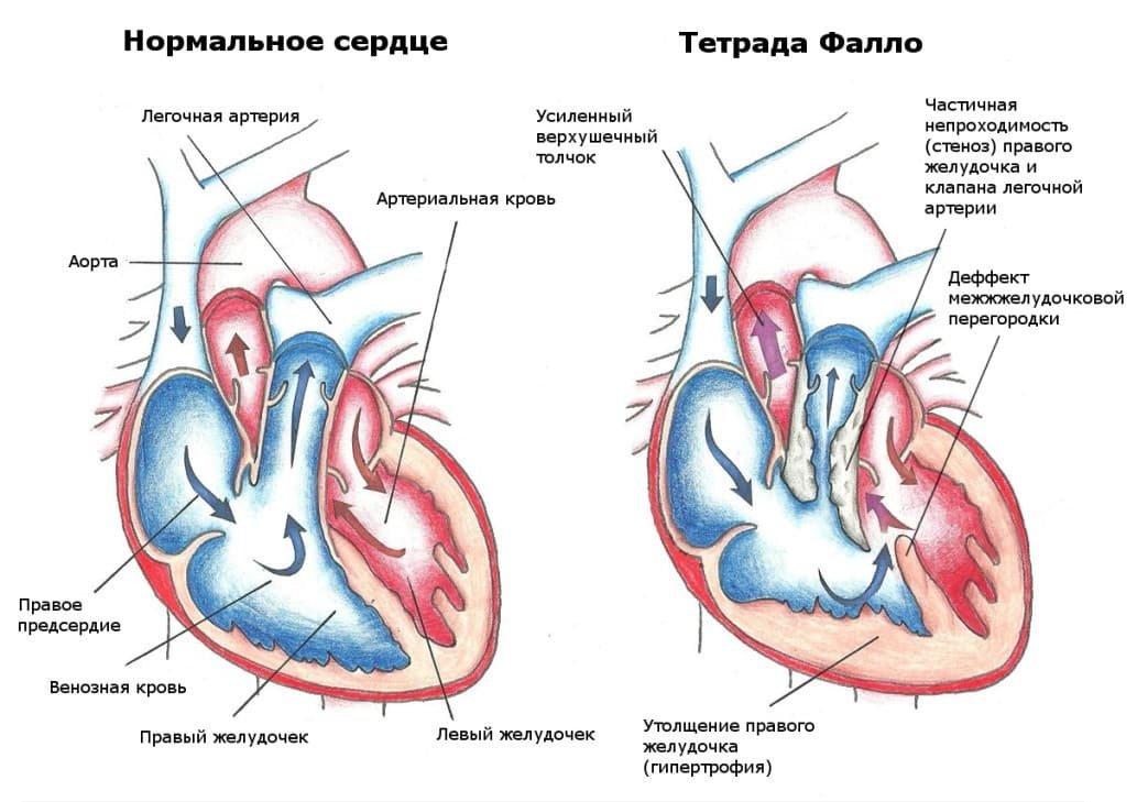 Рентген сердца: снимки с патологиями