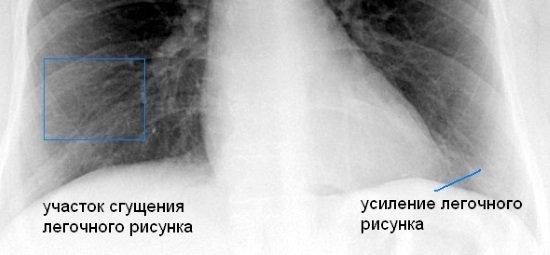 Лёгочный рисунок усилен на рентгене и флюорографии