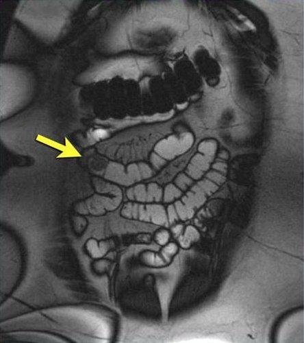 Как делают магнитно-резонансную томографию кишечника: альтернативы