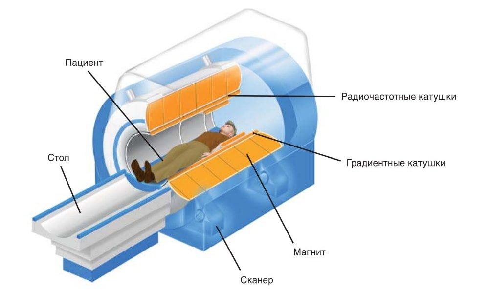 Патологии крестцово-подвздошных сочленений на МРТ: описание процедуры, результаты сканирования