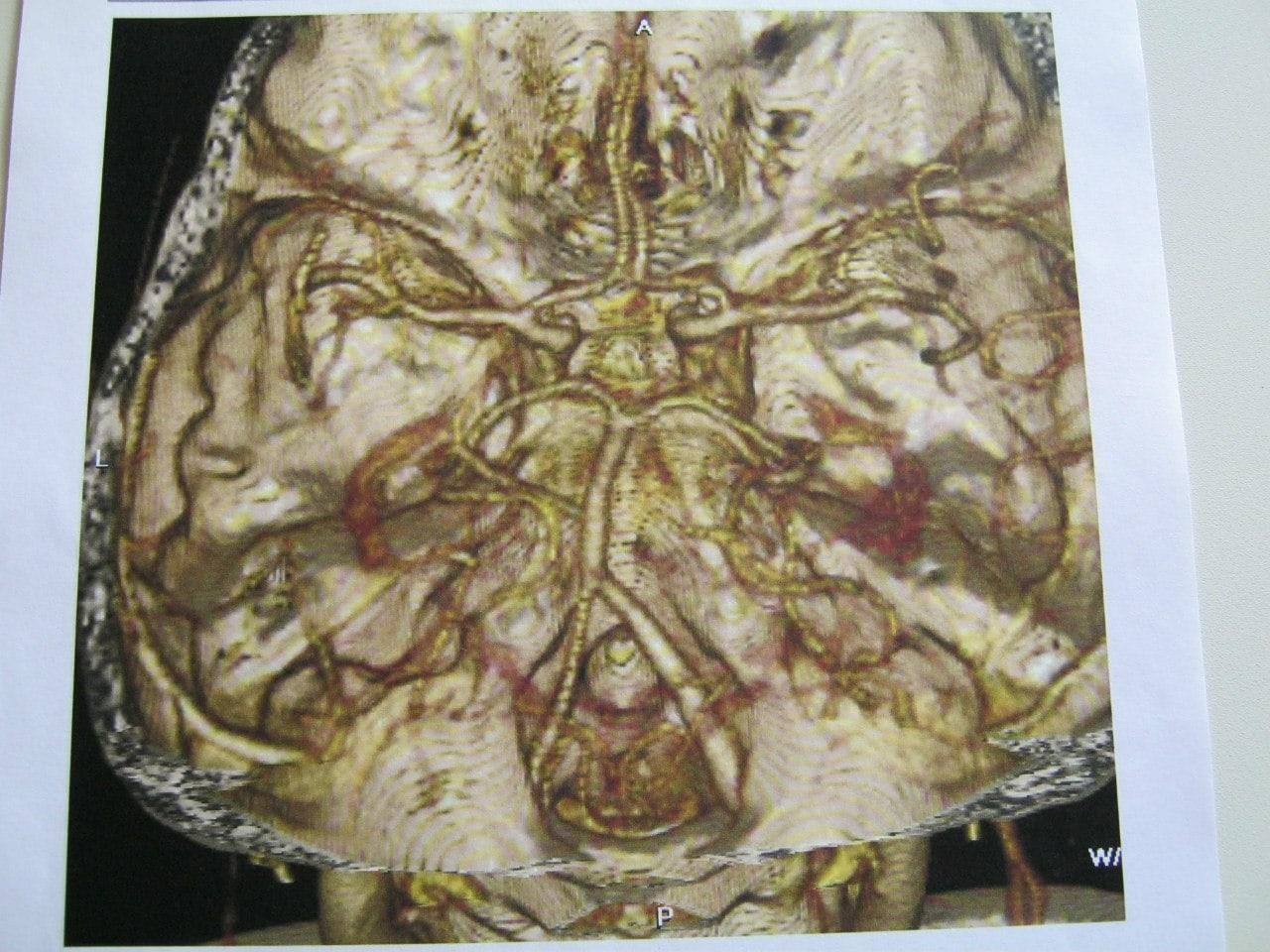 сужение левой позвоночной артерии в сегменте V4