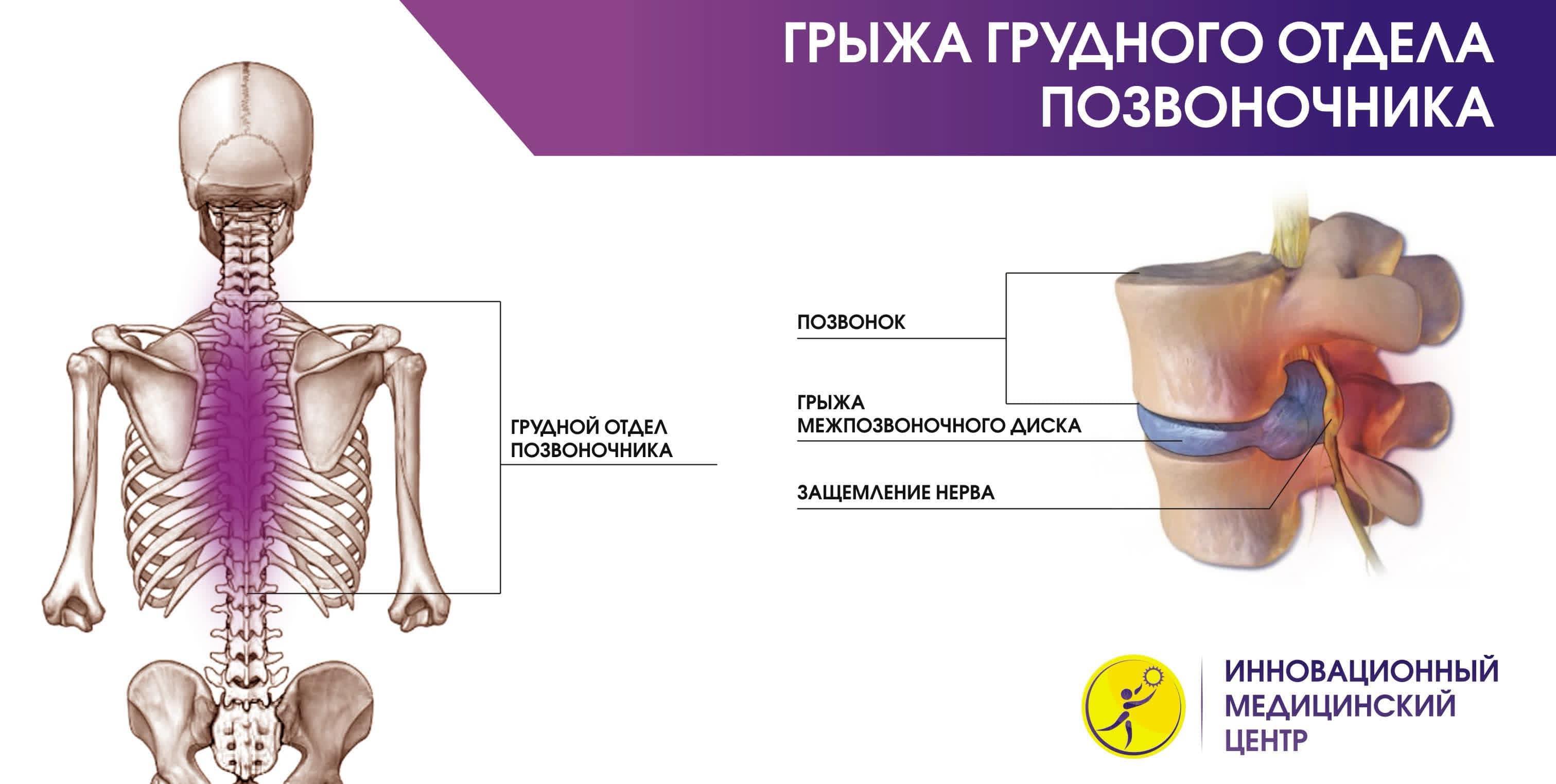 Как делается томография грудного отдела позвоночника thumbnail