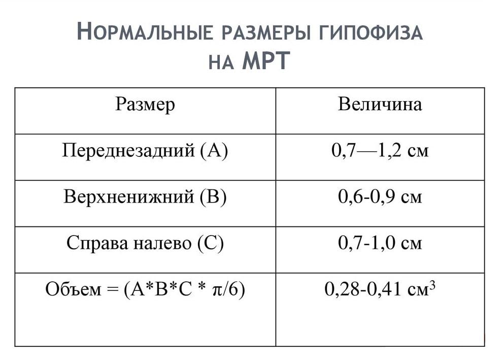 МРТ гипофиза: показания, проведение с контрастом