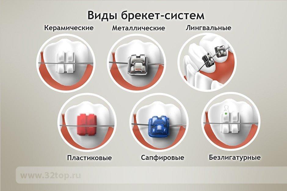 МРТ с имплантами зубов: разрешенные металлы, противопоказания