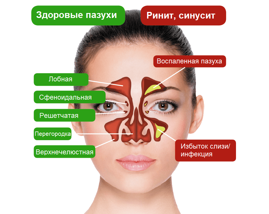 МРТ пазух носа: когда применяют