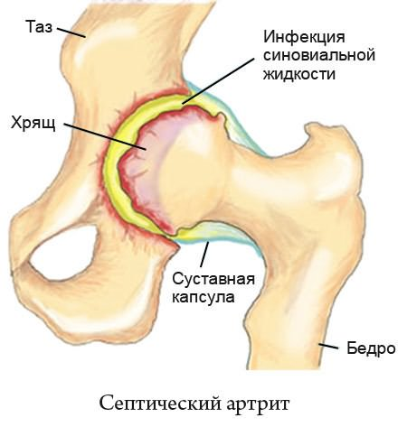 Магнитно-резонансная томография ног: как делают и какие заболевания выявляет