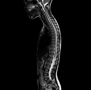Вредна ли компьютерная томография позвоночника