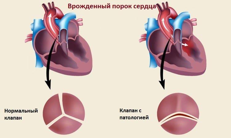 Что покажет МРТ сердца и сосудов