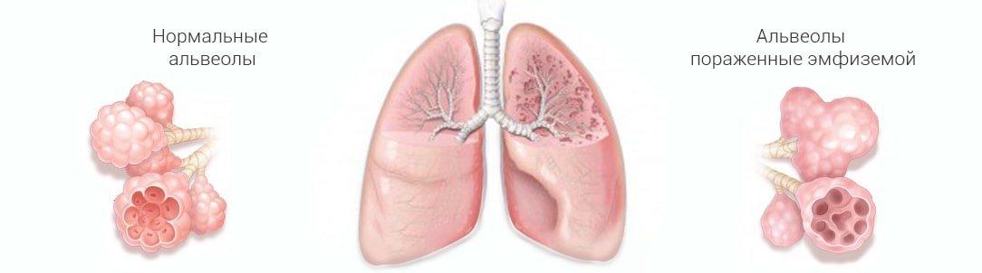 КТ и МРТ лёгких: какое обследование лучше