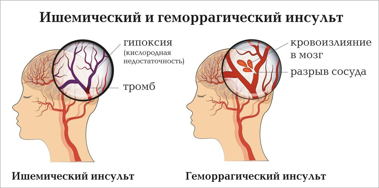 Компьютерная томография: диагностика заболеваний головного мозга