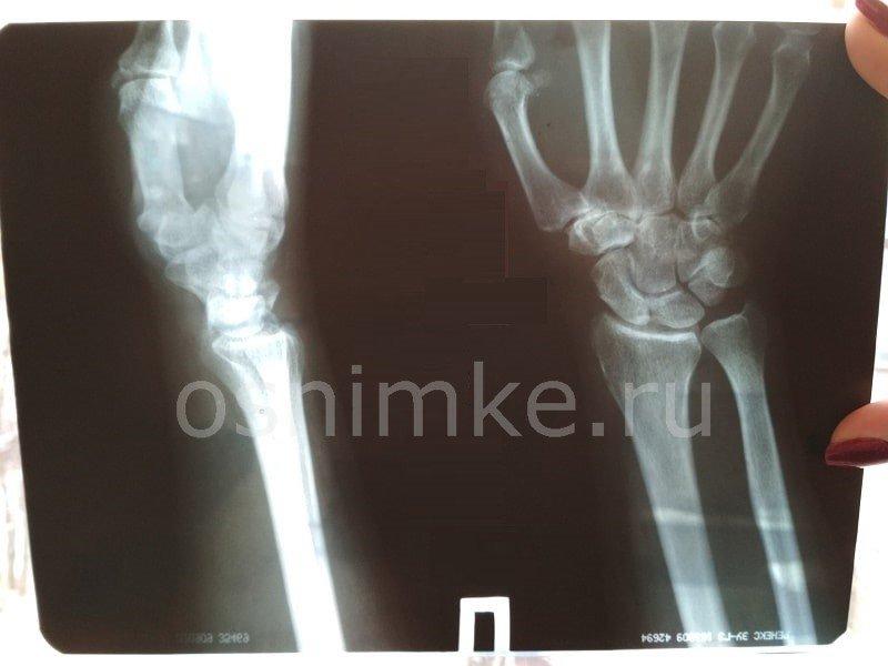 Перелом на правой руке