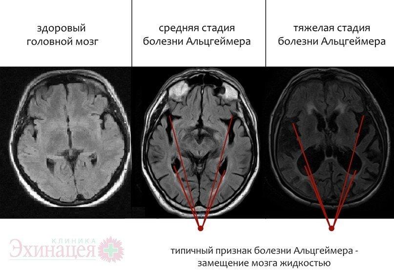 При каких заболеваниях в головном мозге очаги на МРТ