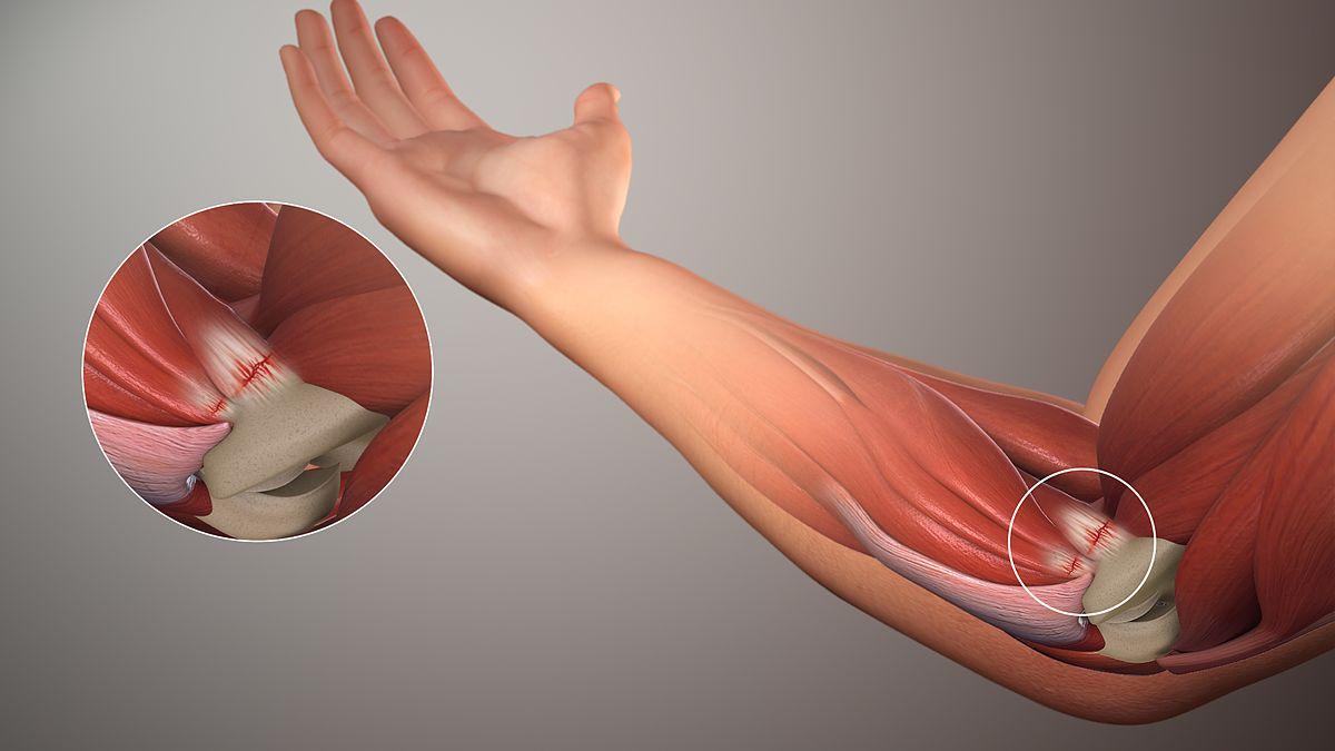 МРТ локтевого сустава: что показывает диагностика